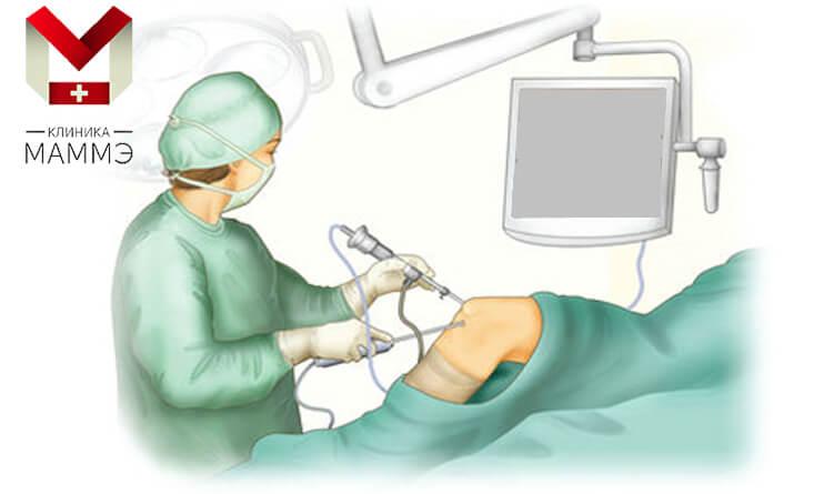 artroskopia.jpg