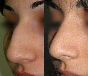 Пластика носа, фото до и после.