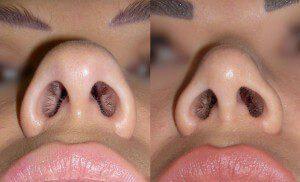 Ринопластика, фото до и после.