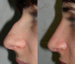 Ринопластика — фото до и после.